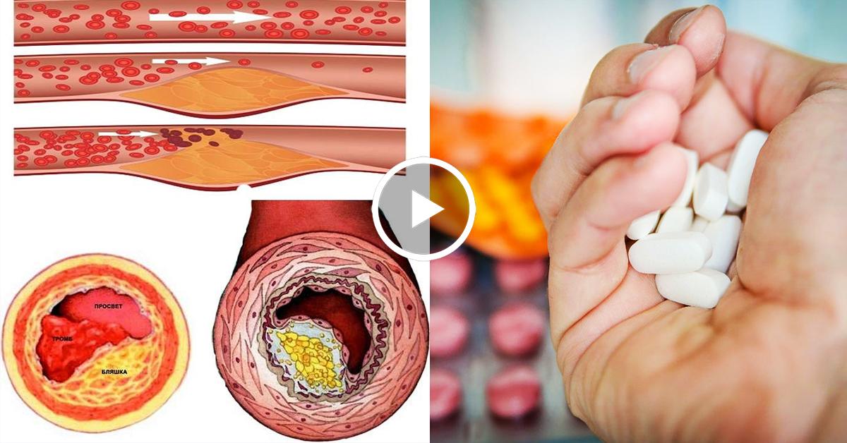 Как вывести холестерин из сосудов народными средствами