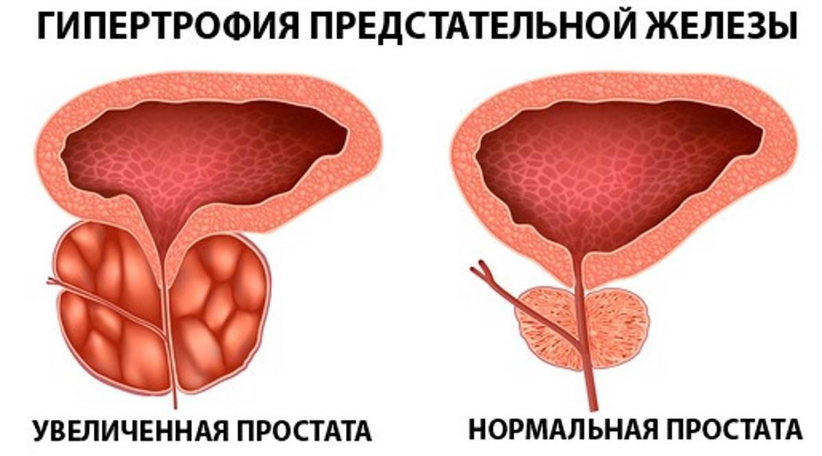рецепт от паразитов