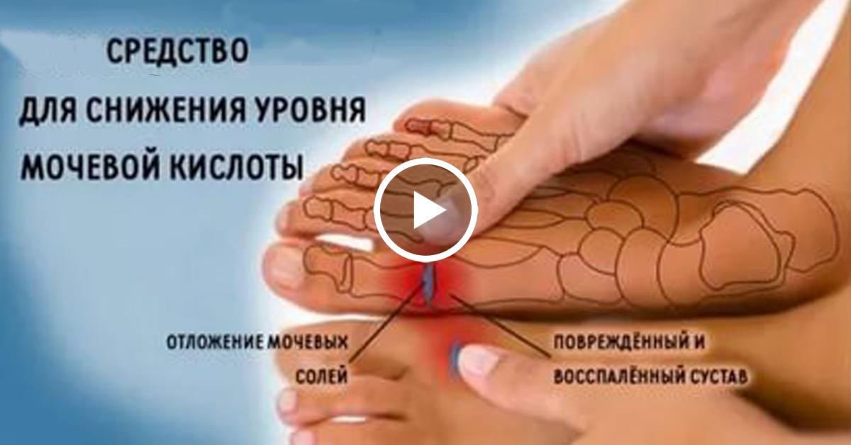 Выведение солей мочевой кислоты из суставов боль в локтевом суставе форум