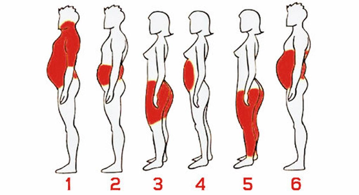ожирение и метаболизм эндоморфу