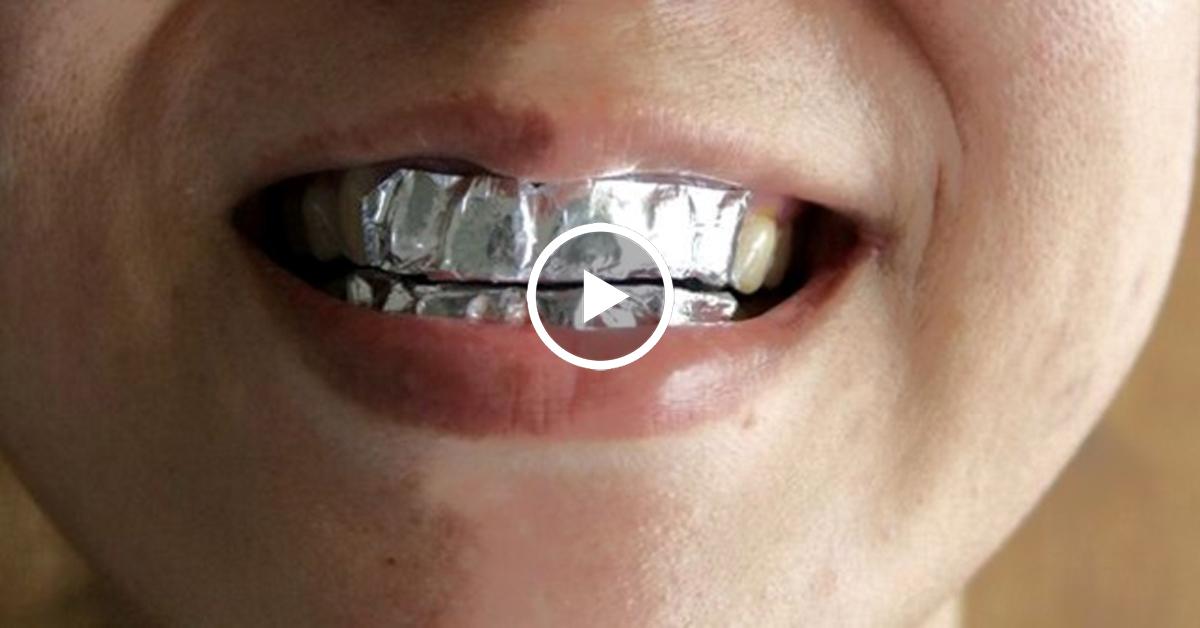 красивые зубы фото улыбка мужчины