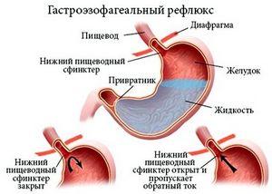 признаки паразитов в организме человека лечение
