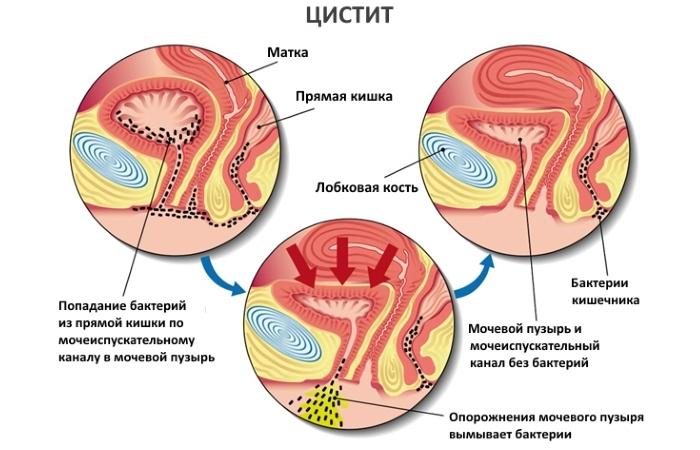 рецепт лечение цистита