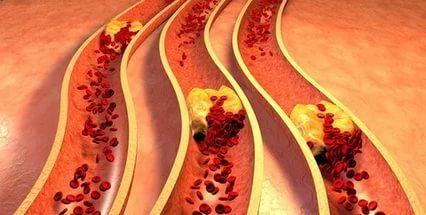 лекарство от высокого холестерина
