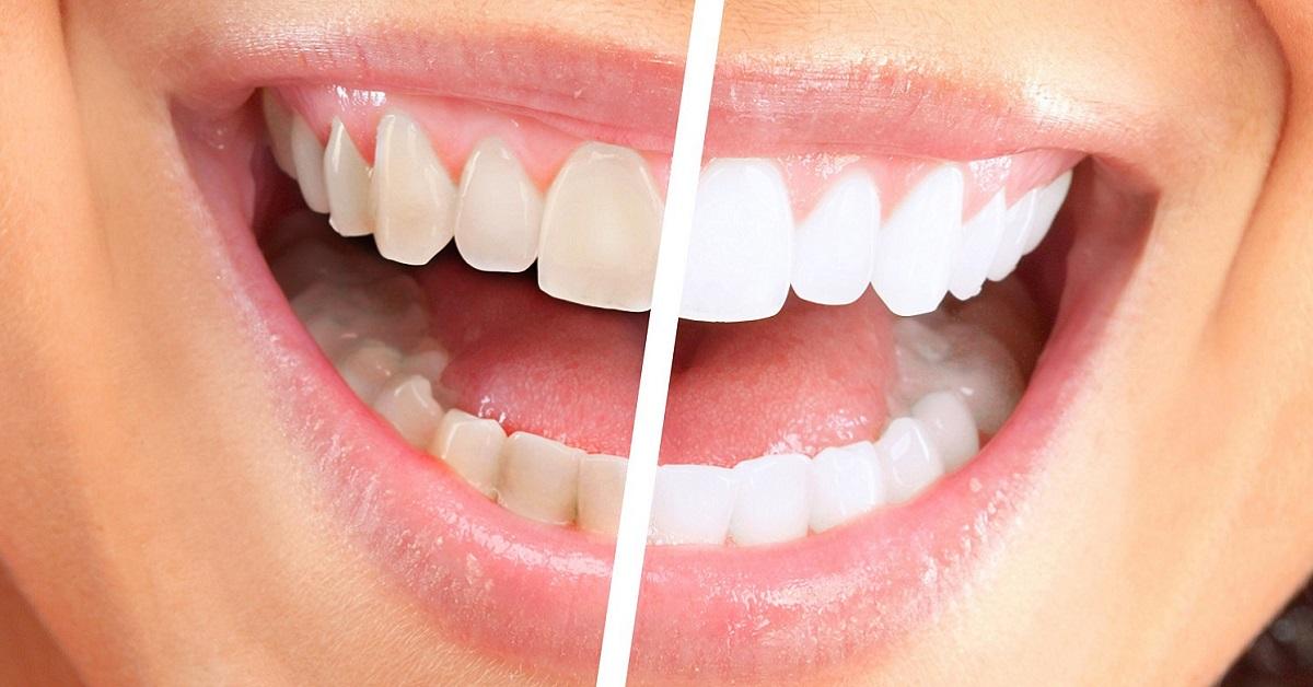отбеливание зубов фольгой и содой