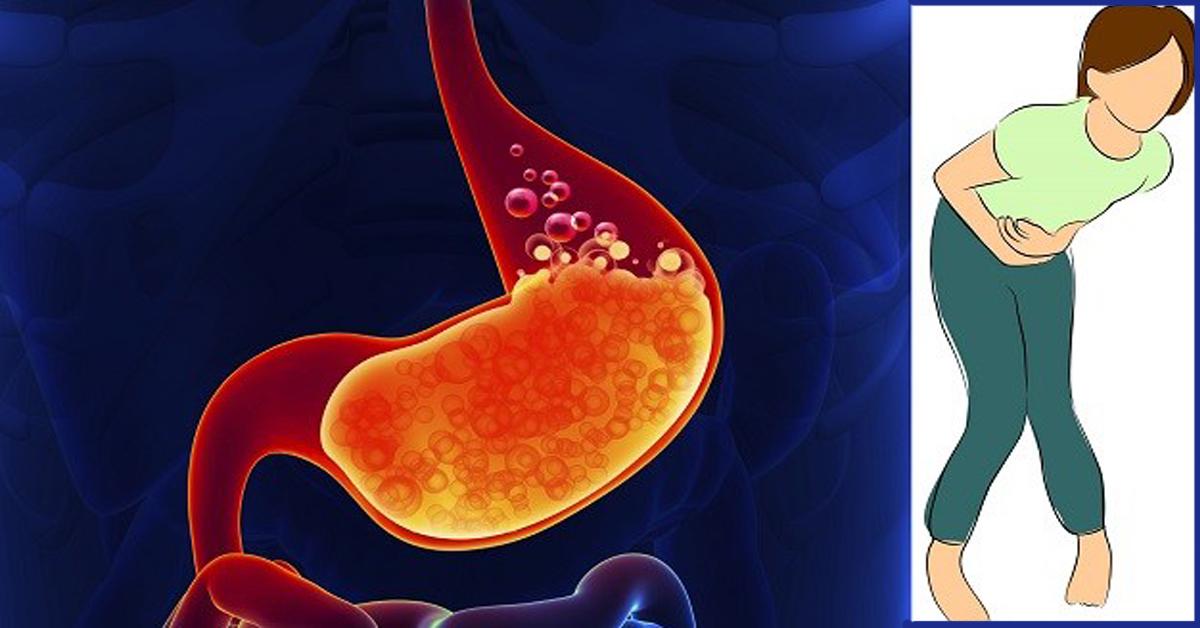 Цирроз печени варикоз