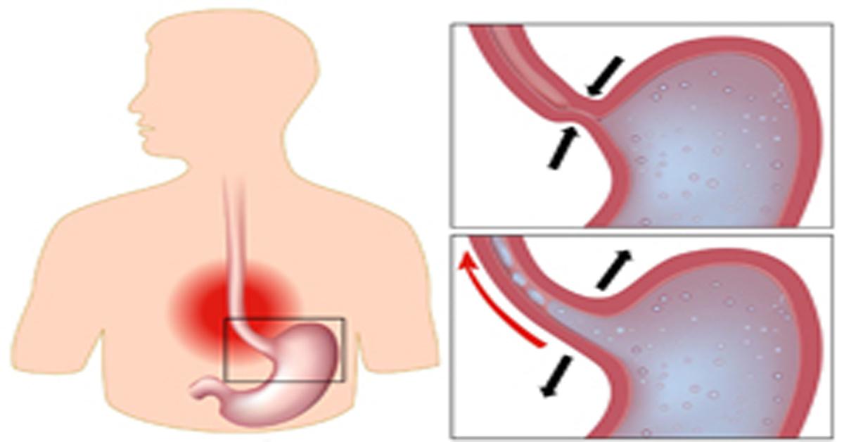кислотность желудка и запах изо рта
