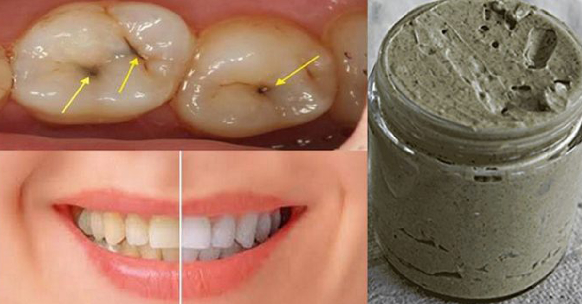 Можно удалить зубной камень в домашних условиях