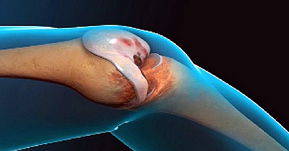 Акупунктурные точки шейный остеохондроз
