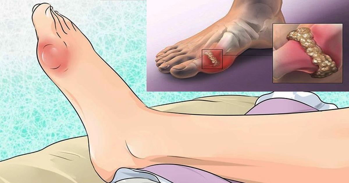 средства растворяющие соли на суставах