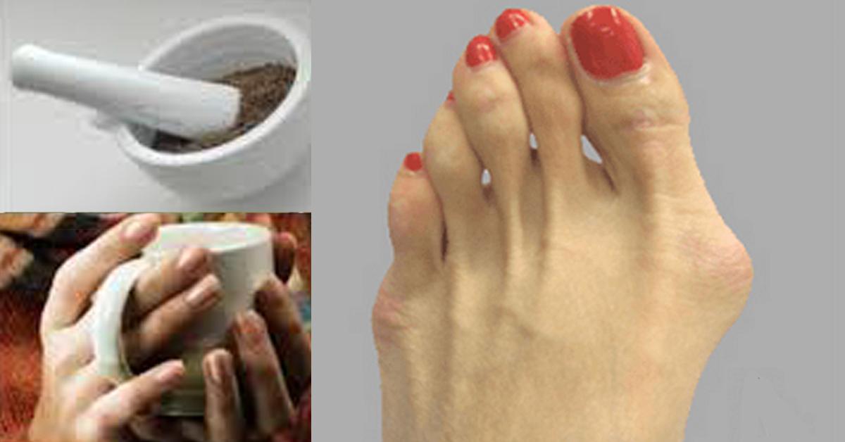 Удаление косточек на ногах лазером - плюсы и минусы.