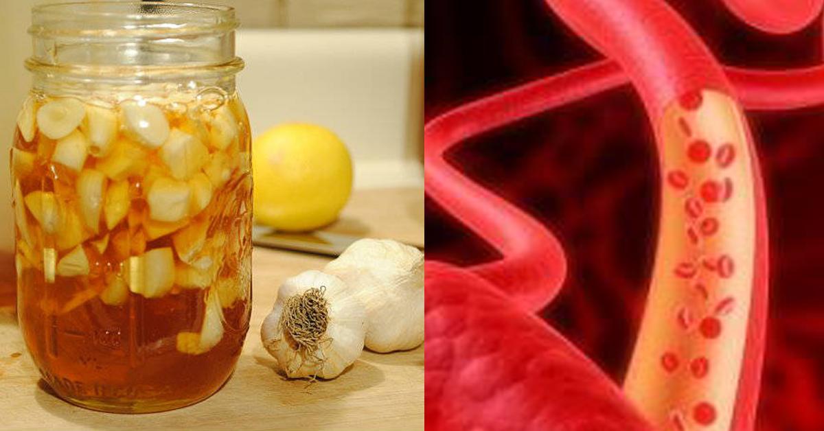 лекарство холестерина в крови название