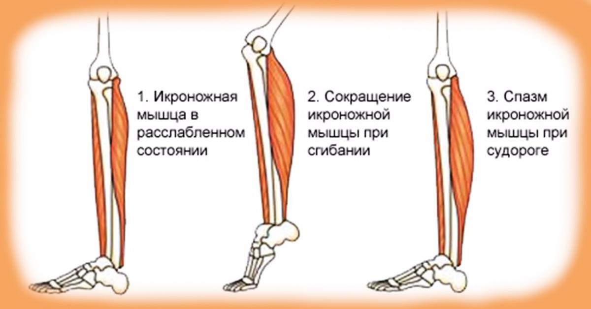 Как избавиться от судорог в ногах ночью как их лечить и что делать