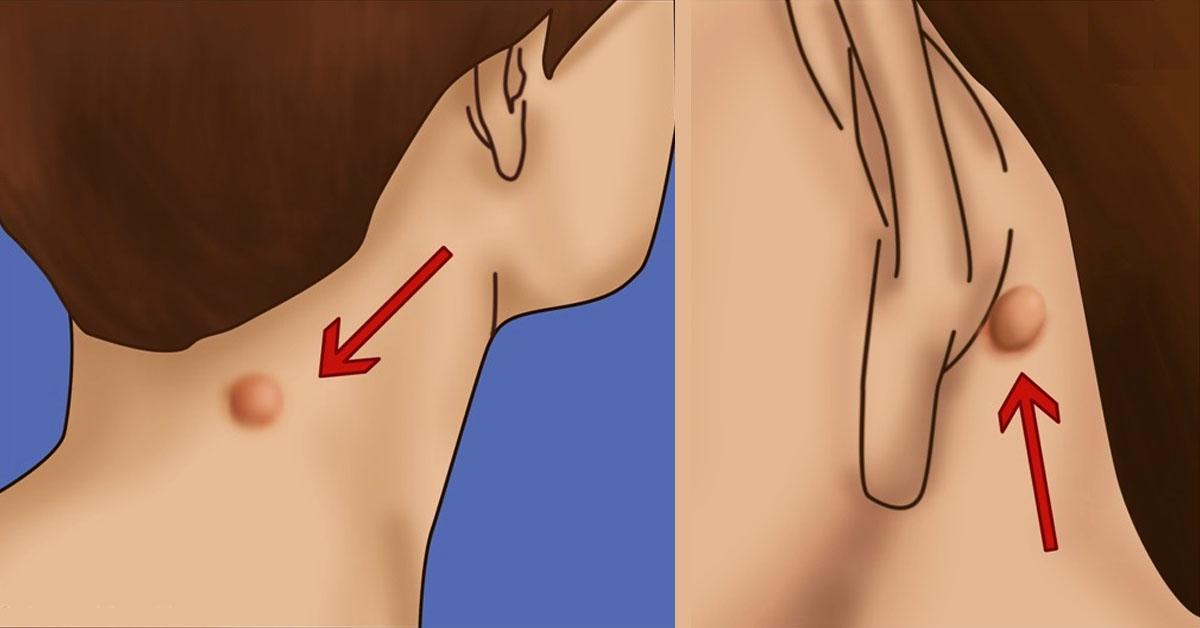 Картинки по запросу У вас есть бугорок на шее, спине или за ухом? Вот как быстро от него избавиться, применяя лучшие рецепты!