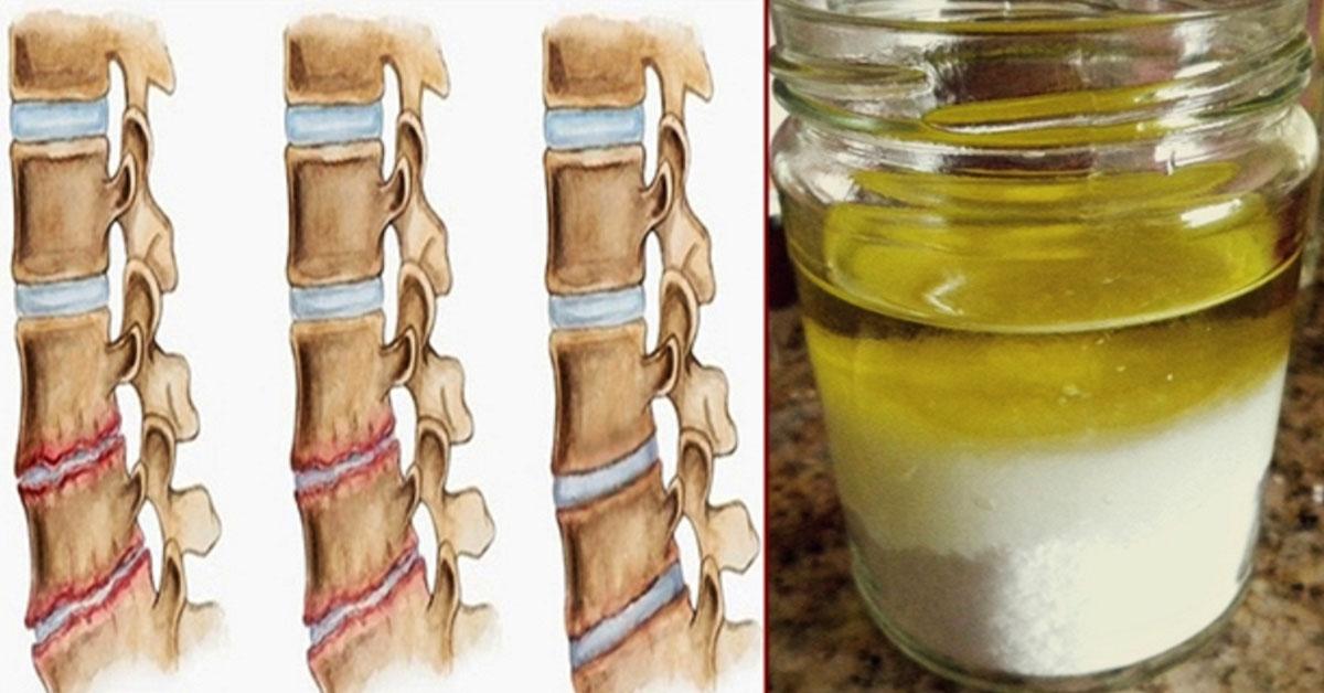 Мощная природная смесь быстро укрепит кости и устранит боли в коленях, спине и суставах!