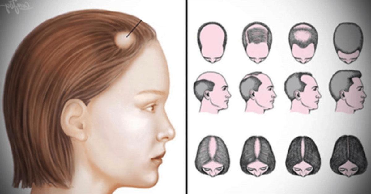 выпадение волос симптомы лечение