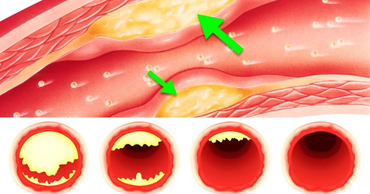 низкий холестерин признаки