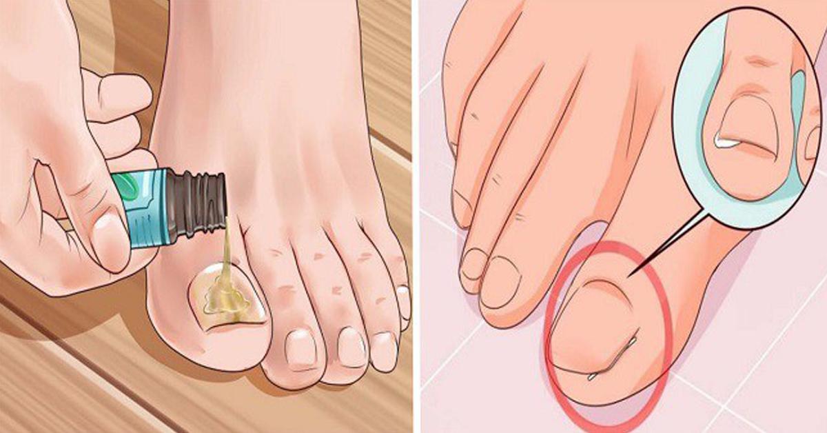 Как выправить вросший ноготь в домашних условиях