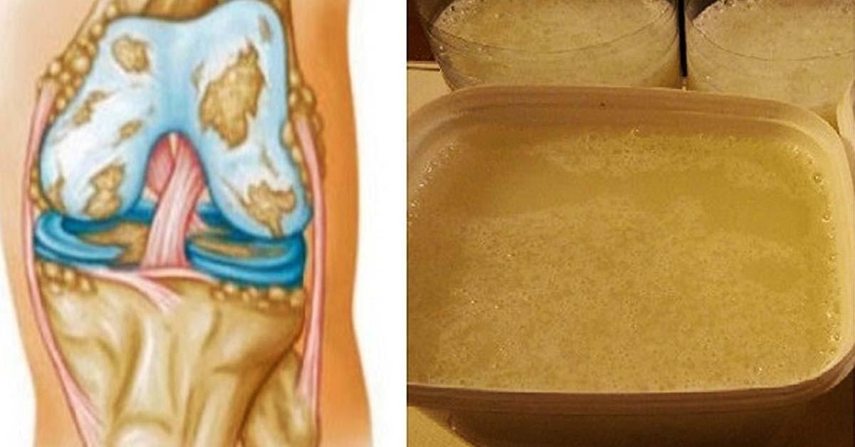 Мази от боли в суставах (колен рук ног) список лучших средств