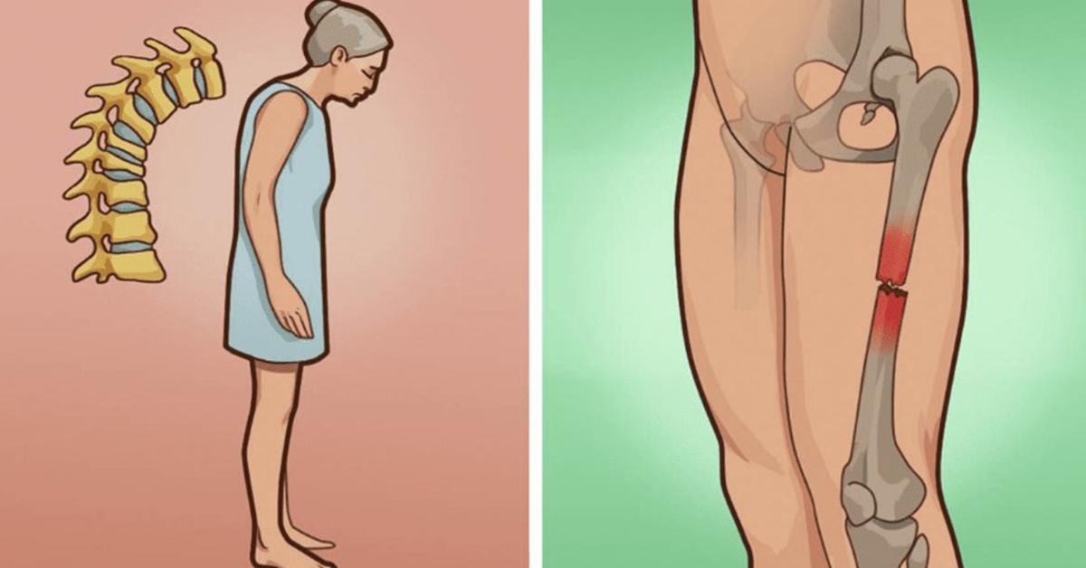 Фактором риска развития остеопороза является